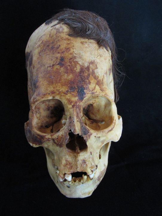 Dieser Paracas-Schädel ist einer von Hunderten von seltsamen, missgestalteten Schädeln, die 2012 an der Südküste von Peru gefunden wurden und aus de... - Bildquelle: Brien Foerster